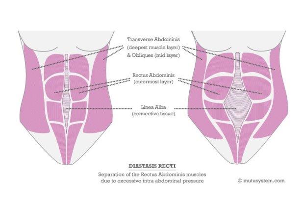 abdominal separation mutusystem